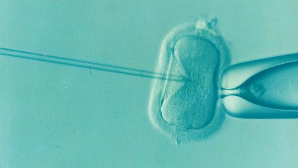 In vitro jako metoda leczenia niepłodności? Sprawdzamy!